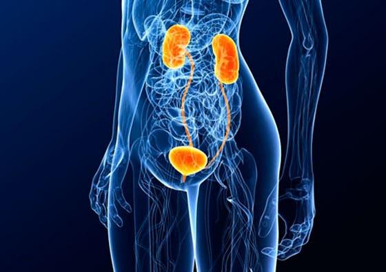 Infección en las vías urinarias
