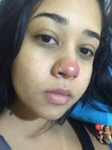 Quedó parapléjica por una infección que sufrió por un piercing en la nariz.
