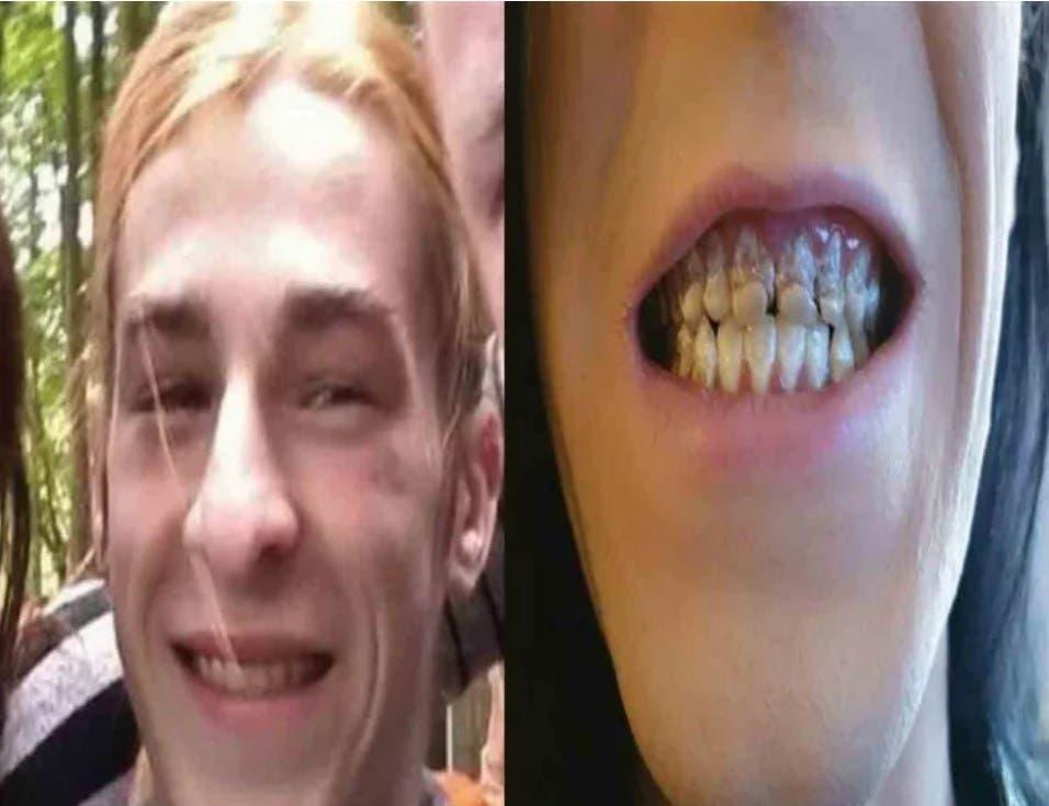 Fotos: Joven se queda chimuelo al perder dientes luego de tomar bebida energética