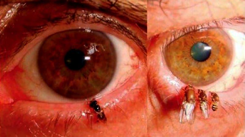 Mujer va al doctor y descubren que tenía cuatro abejas en el ojo