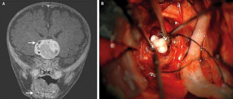 Doctores descubren dientes en el cerebro de un bebé (Fotos)