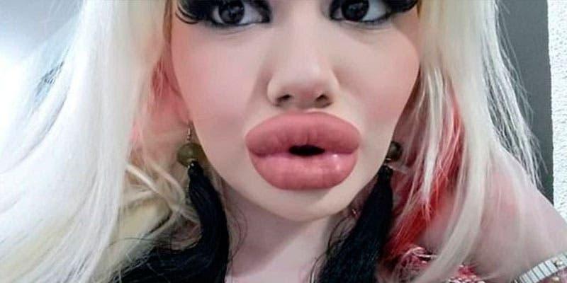 Quiere tener los labios más grandes del mundo; lleva más de 15 operaciones