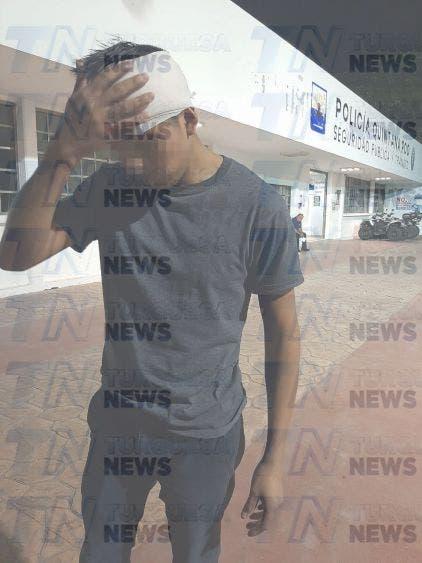 Denuncian brutalidad policiaca en Cozumel, agentes le rompen a patadas la cabeza a joven que salía de trabajar.