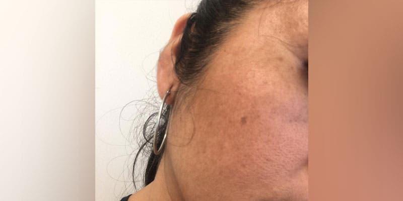 Combate las manchas o paños en tu cara por la exposición al sol.