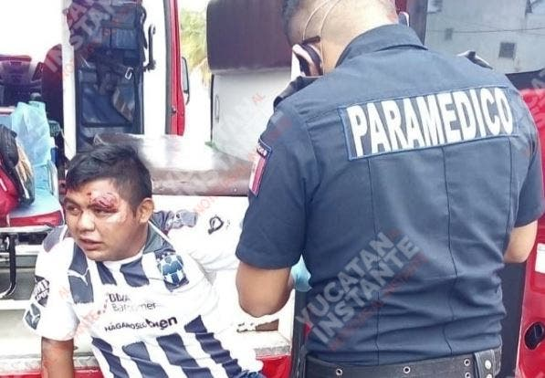 Conductor de moto derrapa por evitar atropellar un perro en Progreso