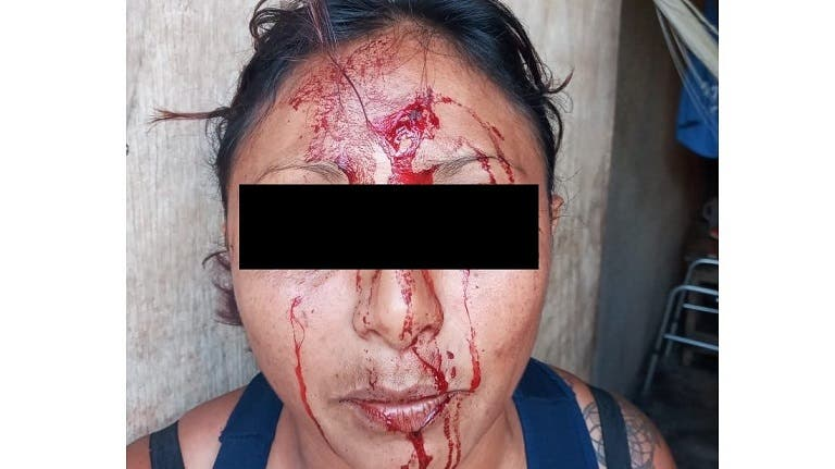Mujer agredida por su pareja en Tizimín.
