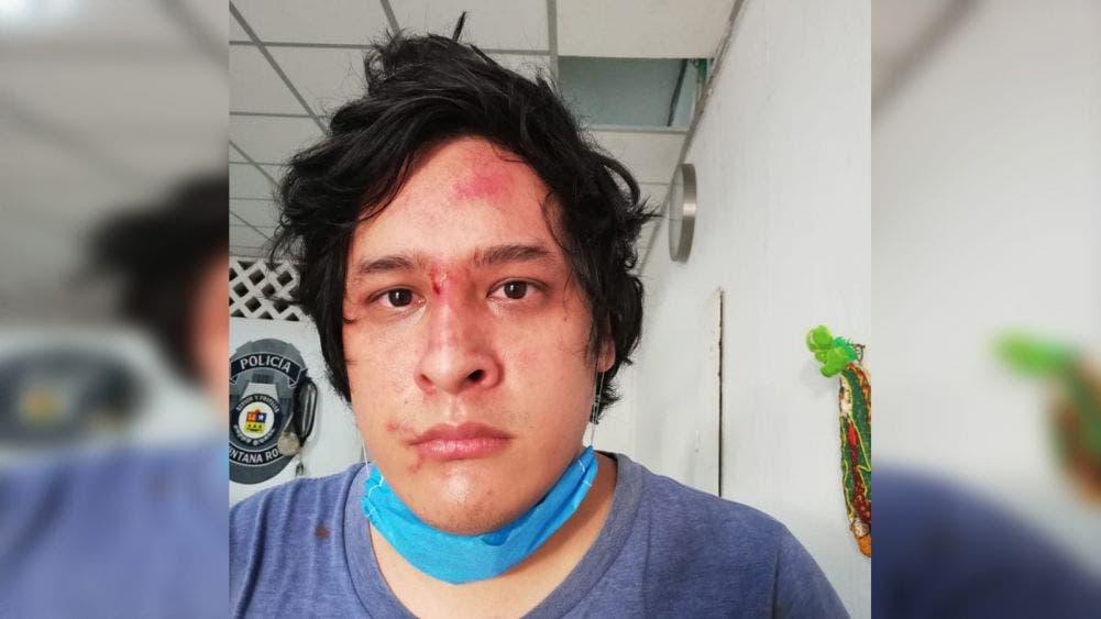 CDHQROO investiga caso de brutalidad policíaca contra jóven