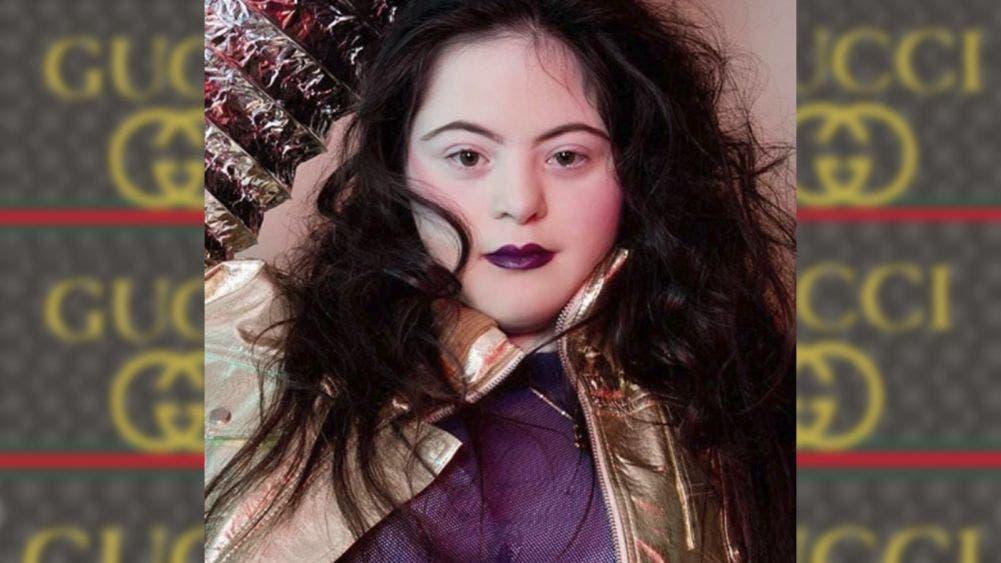 Ellie Goldstein, tiene síndrome de Down, pero es la imagen de Gucci
