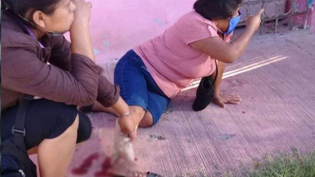 Ataca perro callejero a señora de Valladolid; la manda al hospital