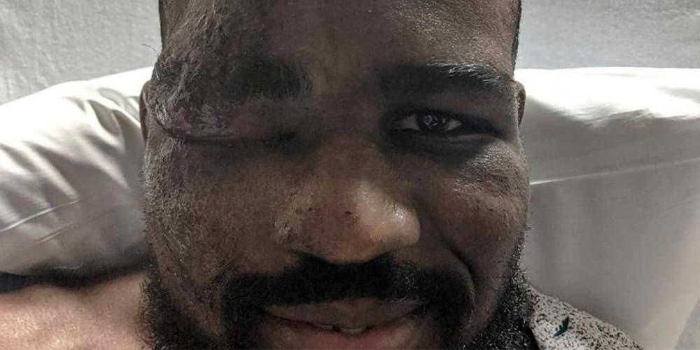 Luchador cuenta cómo su corazón dejó de latir
