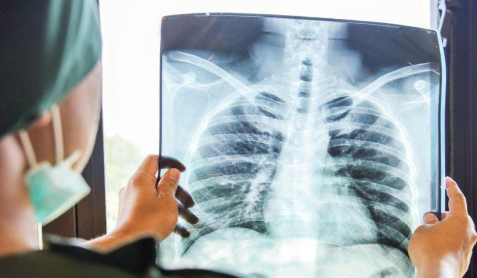 Se triplica en Quintana Roo los casos de tuberculosis; en 2019 se reportaron 307 y en lo que va de este año son ya 895 contagios.