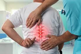 Pacientes con Covid-19 están más expuestos a fractura vertebral: Estudio