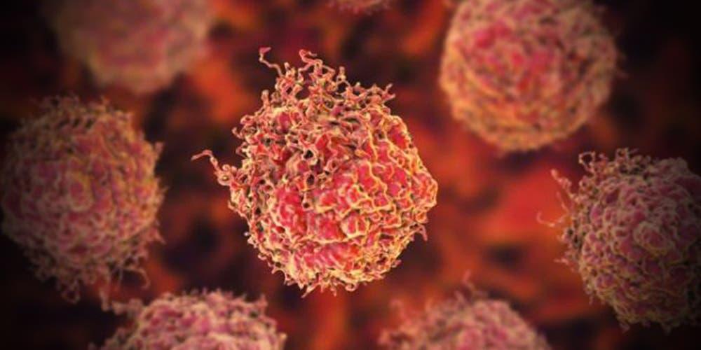 Científicos descubren cómo eliminar el cáncer de las células