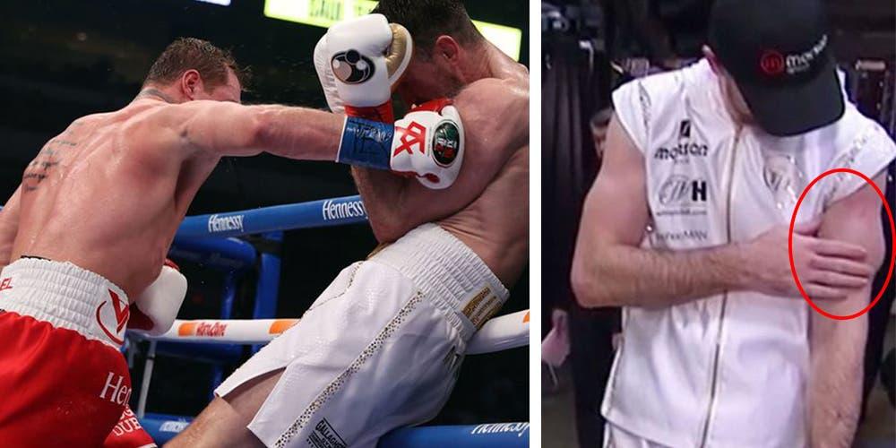 ¡Insólito! Canelo Álvarez quiebra los biceps de Smith (VIDEO)
