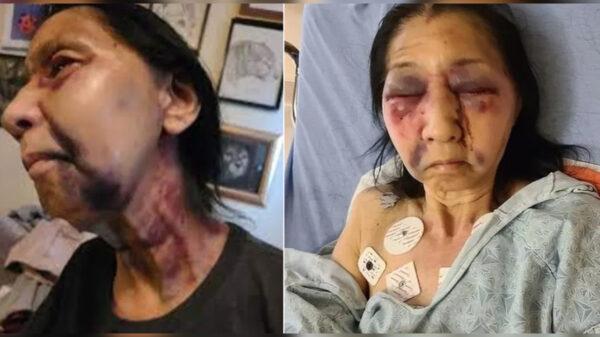 Joven racista en EU destroza a golpes a abuelita méxicoamericana