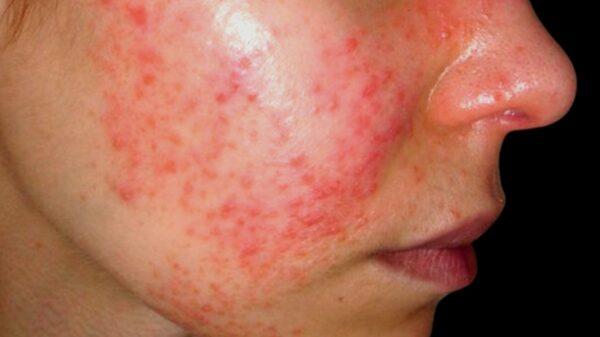 Científicos de la UNAM que buscan tratar la lupus, invitan a yucatecos a registrarse en plataforma