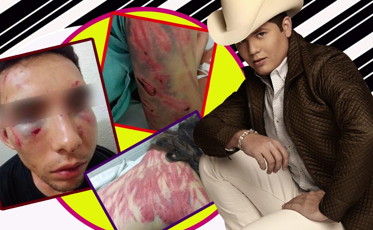 El cantante Remmy Valenzuela es acusado de golpear a su primo y a otra mujer