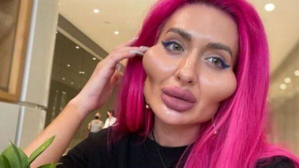 Anastasia Pokreshchu, ha ganado notoriedad debido a la peculiar forma de su rostro; tiene los pómulos más grandes del mundo