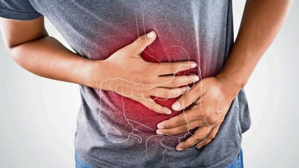 Preocupa a expertos brote de Norovirus ¿Qué es y cómo se contagia?