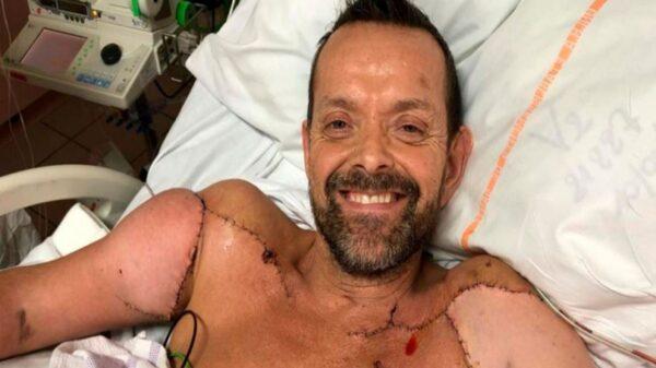El paciente que fue sometido a trasplante doble de brazos, dio a conocer que ya puede flexionar los bíceps