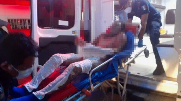 A días de prenderse fuego frente a su familia, fallece en el hospital de Tizimín joven de 24 años