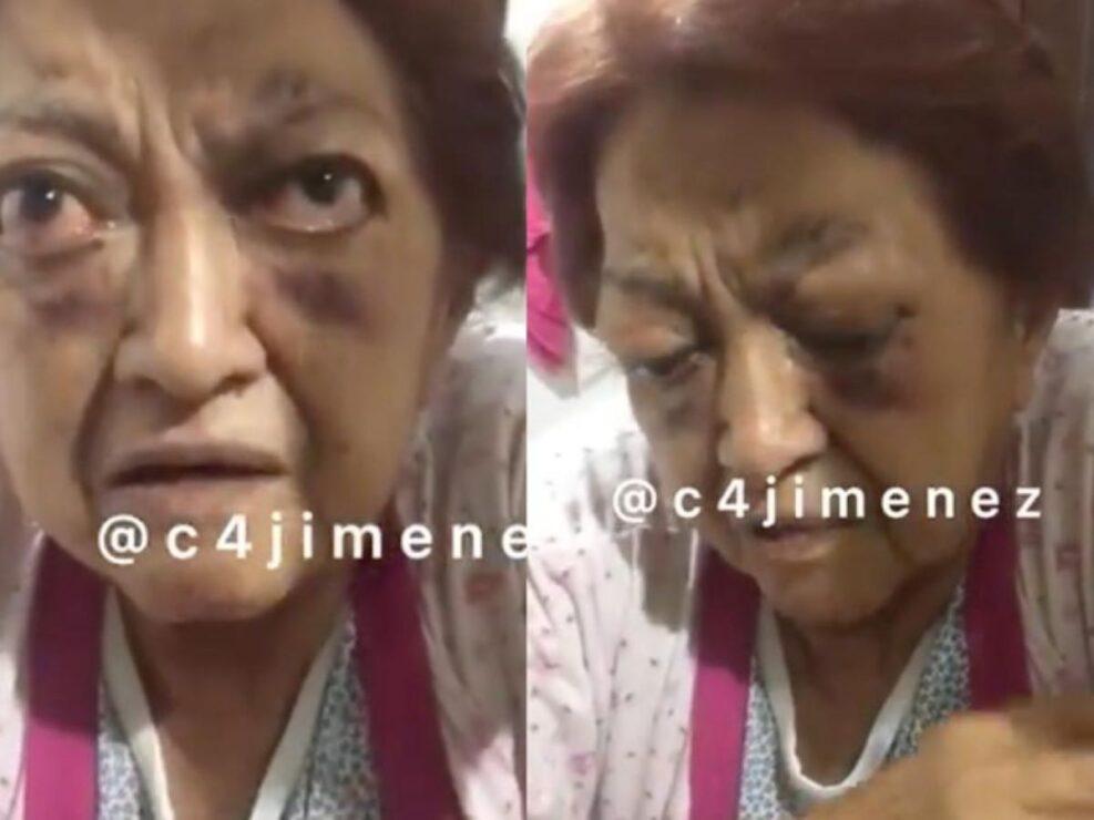 Brindan apoyo a abuelita de 85 años, maltratada por su hijo