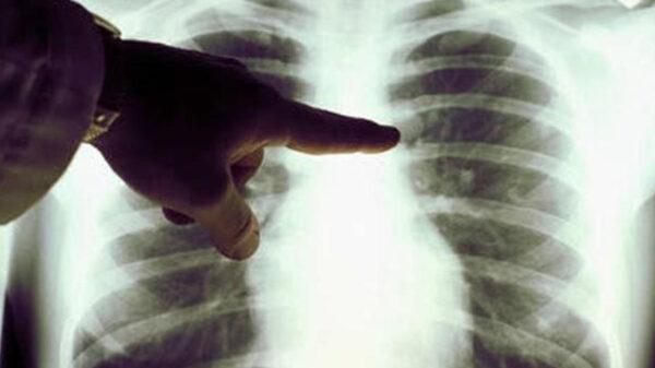 ¡Cuidado! El Covid-19 podría elevar casos de cáncer de pulmón