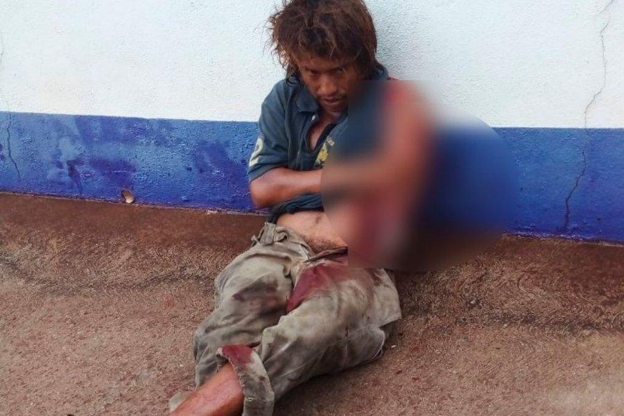 Cocodrilo mutila un brazo a un indigente en Tabasco (VIDEO).
